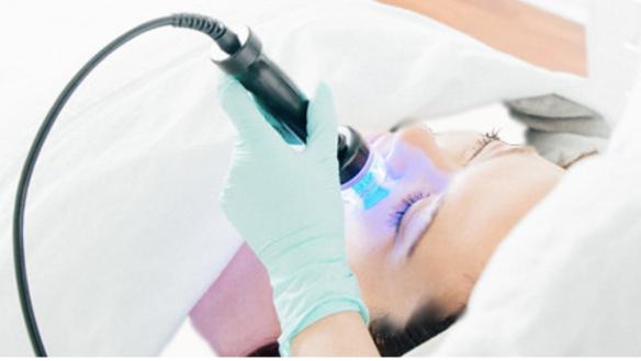 Laser Lift Facial